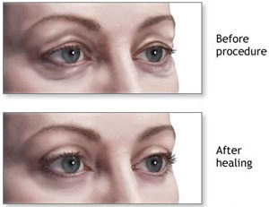 Eyelid surgery in Gurgaon