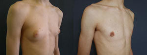 Male Breast Reduction in Gurgaon