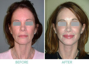 Face Lift Surgery in Gurgaon