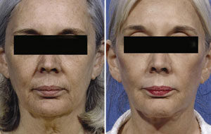 Neck Lift Surgery in Gurgaon