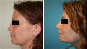 Nose Surgery in Gurgaon